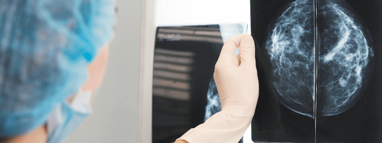 Solis Mamography